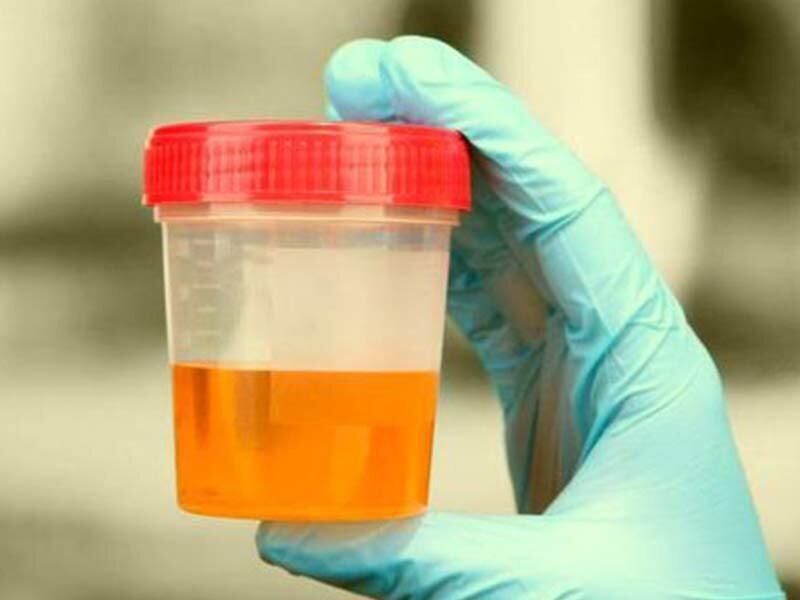 تغییر رنگ ادرار به عنوان نشانه سرطان لوزالمعده یا پانکراس
