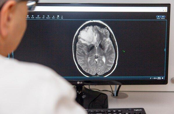 تشخیص سرطان مغز با هوش مصنوعی