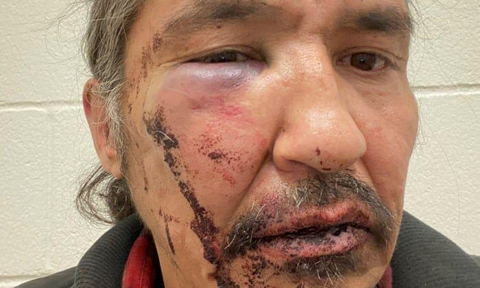 خبرنگاران نخست وزیر کانادا برخورد پلیس با رییس بومیان را شوکه کننده خواند