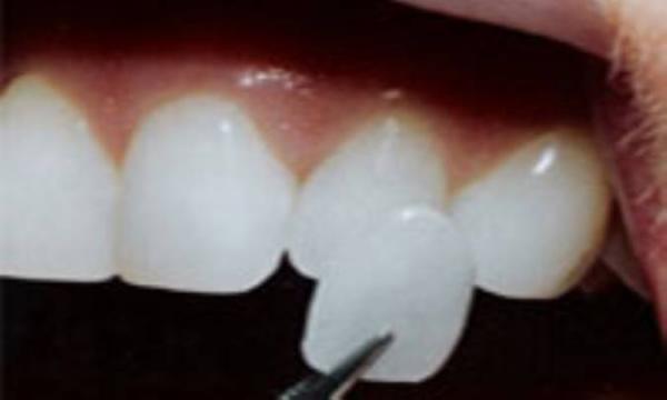 برترین روکش برای دندان های جلویی